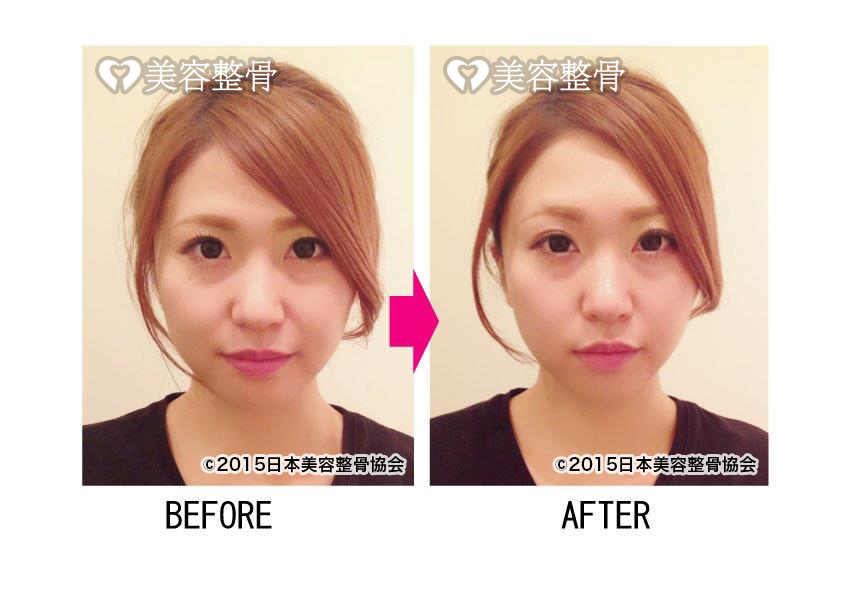 BEFORE→AFTER